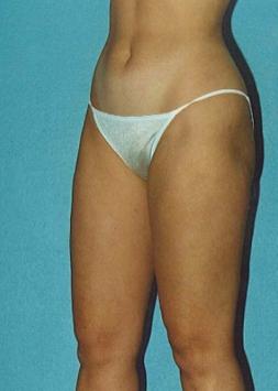 Liposuction Before and After Photos Laguna Beach CA