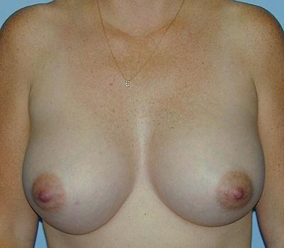 Silicone enhanced boobs