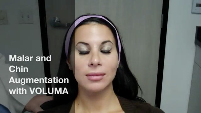 https://www.danmillsmd.com/wp-content/uploads/video/voluma-injection-video.jpg